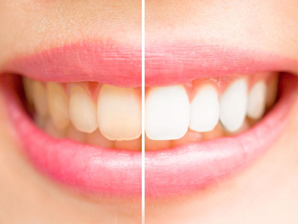 Clinique dentaire Bayard : Pourquoi soigner ses dents sur ce cabinet ?